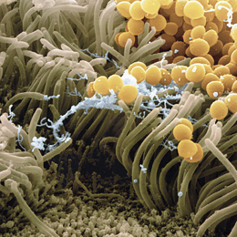 Staphylococcus bacteria in nose