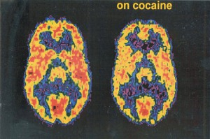 Brain on cocaine